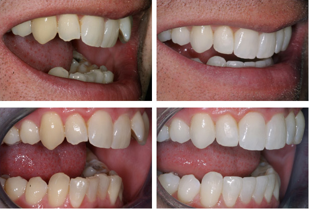 Inman Aligner – Before and after