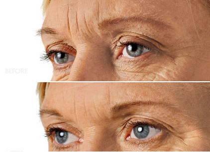 Wrinkle Correction Injections – Before and After